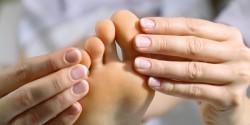 лечение подагрического артрита дома