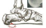 пяточная шпора фото (схема) и рентгенограмма