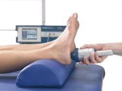 лечение пяточной шпоры ударно-волновой терапией (УВТ-лечение)