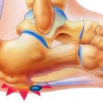 Симптомы пяточной шпоры: как и у кого проявляется эта болезнь и как ее вылечить?
