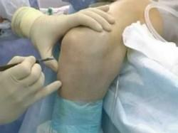 иногда при синовите колена требуется операция