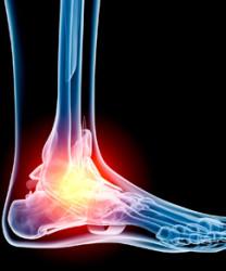 Артрит суставов стопы: какие причины его вызывают и как его вылечить