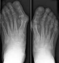 при артрите суставов пальцев стопы часто воспаляются сразу несколько суставов