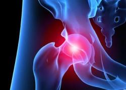 коксартроз - наиболее частая причина болей в суставе