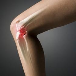 артроз коленного сустава - одно из показанию к назначению Доны