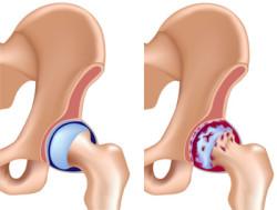артроз тазобедренного сустава - показание к назначению мукосата