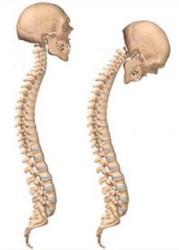 позвоночник в норме (слева) и при болезни Бехтерева у женщин