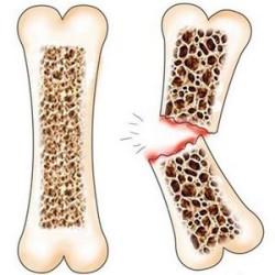 осложнение анкилозирующего спондилита - спонтанные переломы костей