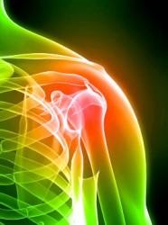 артроз плеча - основная причина болей