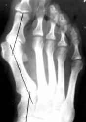деформирующий артроз большого пальца стопы
