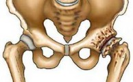 коксартроз - ведущая причина болей в суставе