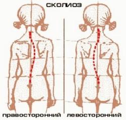 сколиоз - одно из показаний к использованию ортопедических матрасов и подушек