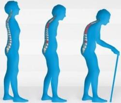 нарушение осанки - еще один признак появляющегося остеопороза