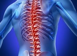 остеопороз часто требует дифференциальной диагностики