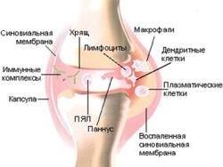 Ревматоидный артрит: симптомы, причины возникновения и как врачи ставят такой диагноз