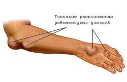 места, где появляются ревматоидные узелки при РА