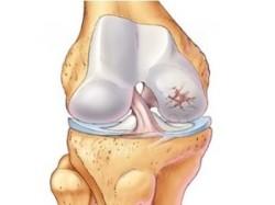 артроз коленного сустава - одно из показаний к назначению этого лекарства