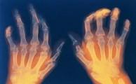 ревматоидный артрит имеет свои отличия от других болезней