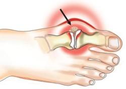 подагра или подагрический артрит
