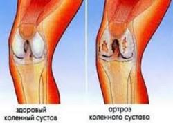 здоровое колено (слева) и артроз коленного сустава