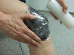 лечение артрита
