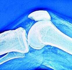 компоненты БАДа укрепляют ткани суставов