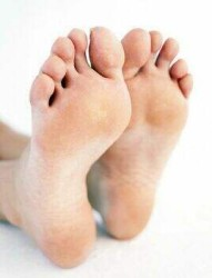 ожирение и плоскостопие повышают риск развития артроза