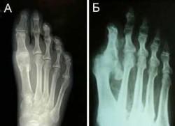 деформирующий артроз пальцев стопы (рис. Б)