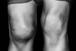 Бурсит коленного сустава: симптомы и лечение