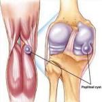 Киста Бейкера коленного сустава: симптомы и лечение