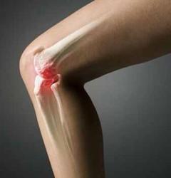 артроз колена - одно из показаний к этой процедуре