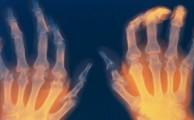 полиартрит вызывается различными причинами