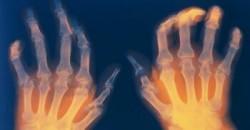 Симптомы полиартрита