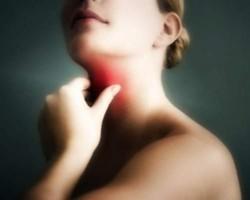 болезнь обычно начинается с тонзиллита