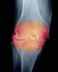 артрит при ревматизме начинается остро