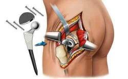 при операции головка бедренной кости заменяется на протез