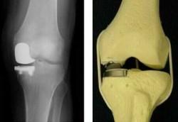 частичный (одномыщелковый) протез сустава