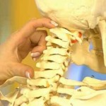 Шейный остеохондроз: симптомы, признаки и лечение