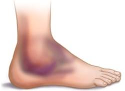 при травме отмечается довольно выраженная боль, заметен отек, объем движений в голеностопном суставе более ограничен