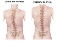 чаще всего заболевание возникает из-за каких-либо нарушений биомеханики – при косом положении плечевого пояса, таза, при различной длине ног