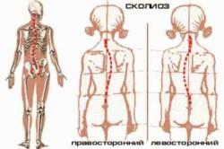 основной целью лечения является -  остановить прогрессирование болезни и добиться стабилизации деформации позвоночника