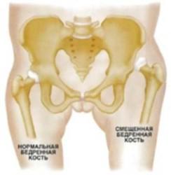 боль может появляться не только при непосредственном повреждении самого сустава, но и расположенных рядом с ним тканей