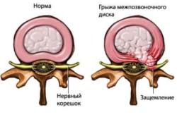 болезнь характеризуется нарушением чувствительности, онемением области, соответствующей иннервации ущемленного межпозвоночным диском нерва