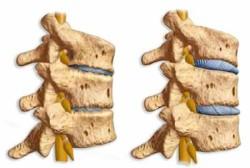 процесс затрагивает как сами суставы, так  прилегающие к позвонковому суставу связки и мышцы