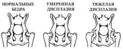 Дисплазия тазобедренных суставов у детей: симптомы и лечение
