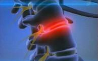 при болезни происходит выпячивание части диска в позвоночный канал и сдавливание спинного мозга