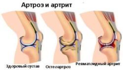 чаще всего боль в суставах обусловлена остеоартрозом