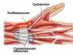 перенапряжение сухожилия приводит к перенапряжению фиброзных волокон и их разрывам