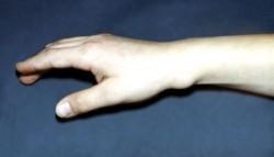 в области воспаленной оболочки сухожилия наблюдается явно выраженная, но ограниченная припухлость
