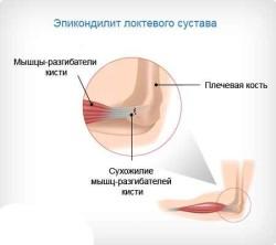 принято разделять заболевание на два вида: внутренний и наружный тип